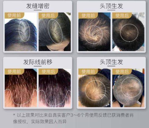 Xiaomi выпустила кепку для роста волос